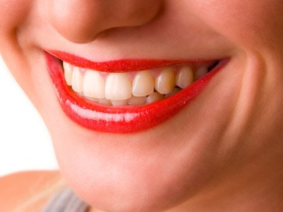 cosmetic-dentistry-kerala